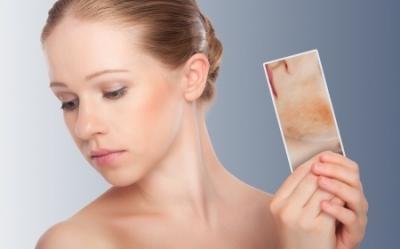 síntomas de diabetes decoloración del cuello erupción